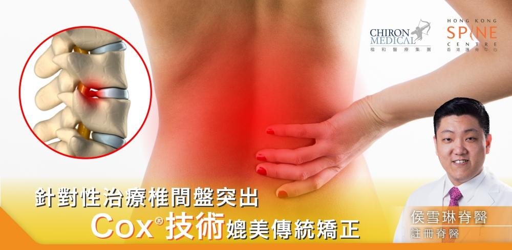 利用Cox技術治療椎間盤突出_860-420_工作區域 1