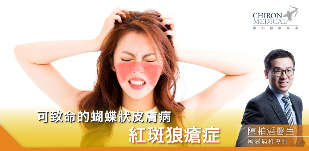陳柏滔醫生 — 可致命的蝴蝶狀皮膚病 紅斑狼瘡症_860-420_工作區域 1
